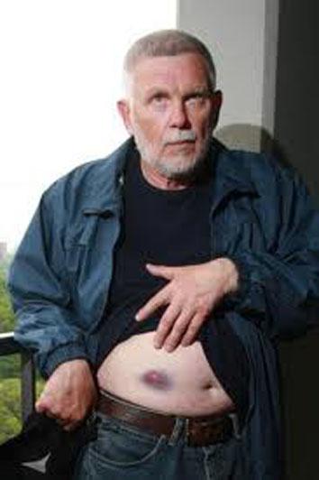 Георгий Острожнюк  показывает рану от дротика
